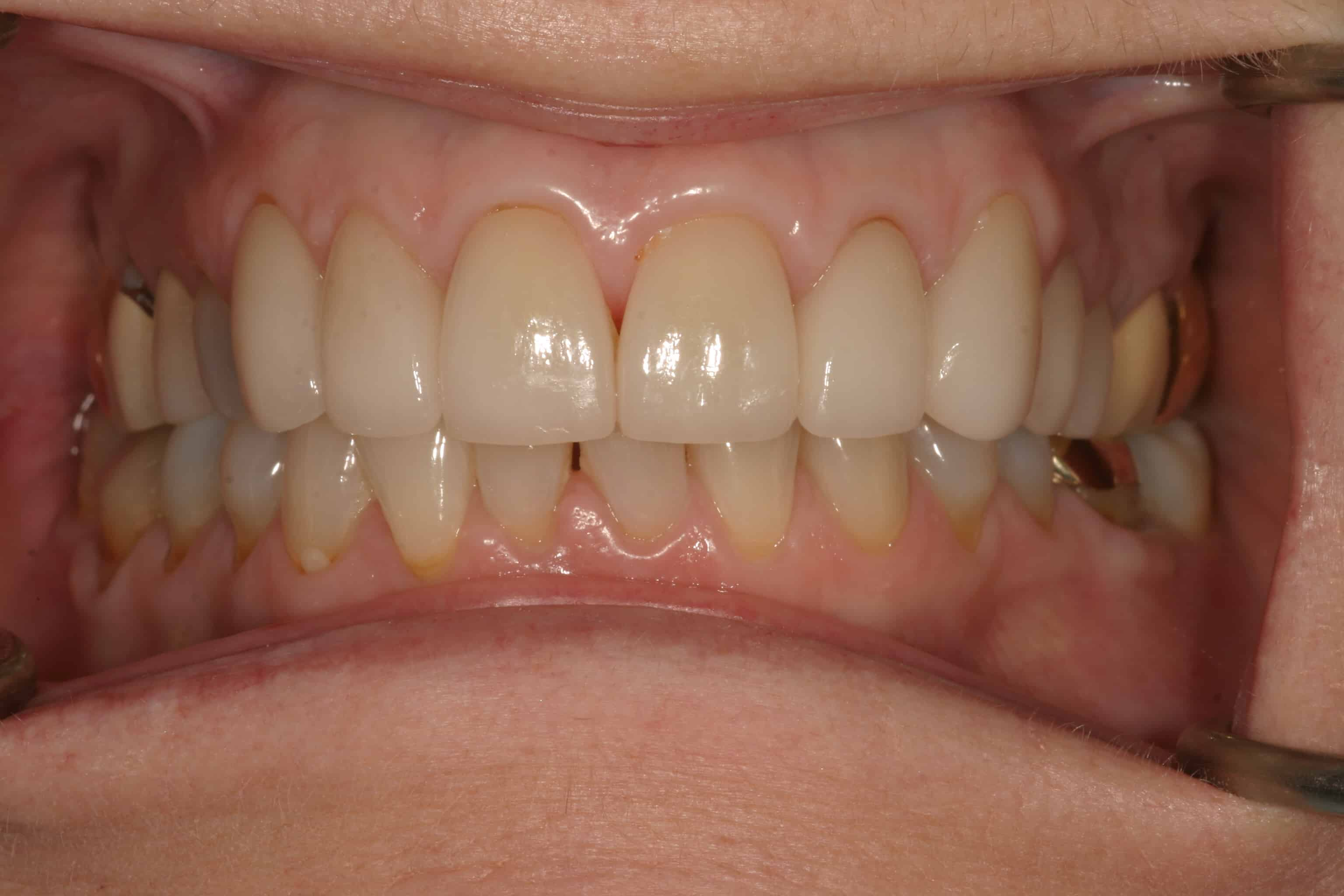 cosmetic dentistry after 11