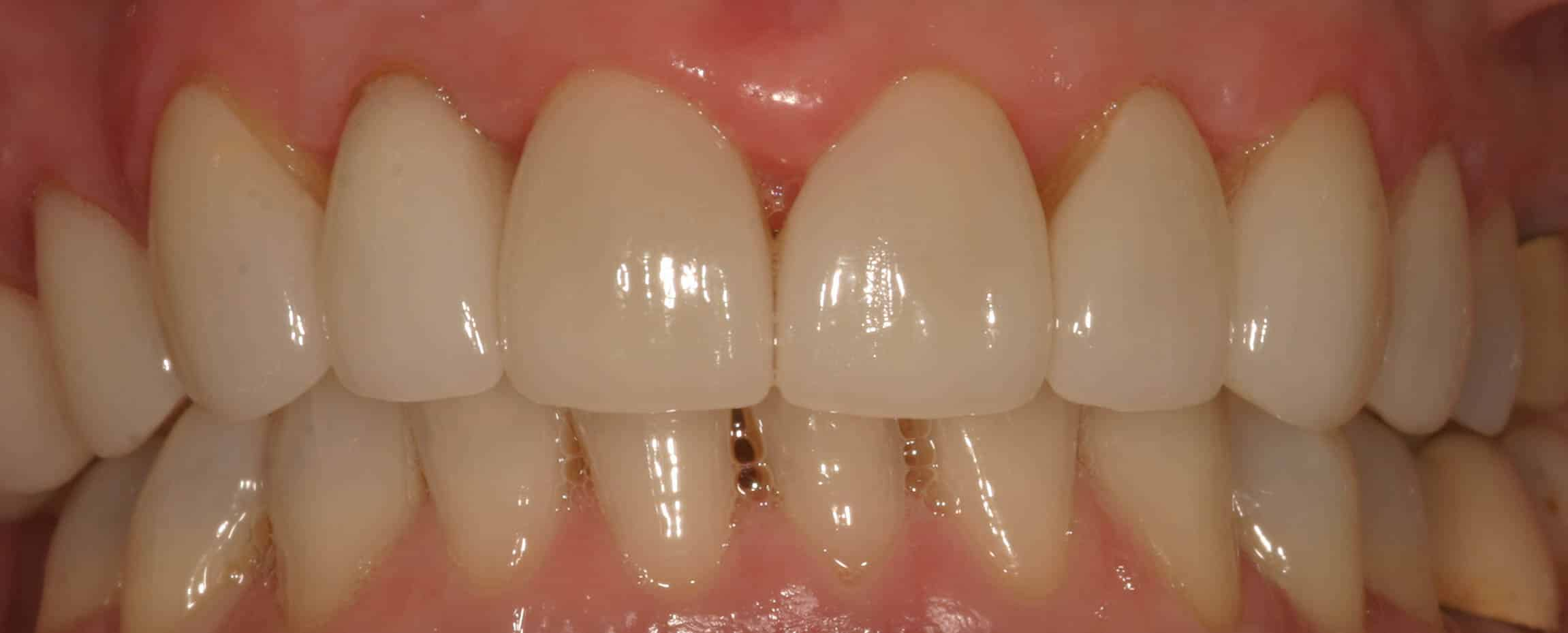 cosmetic dentistry after 12