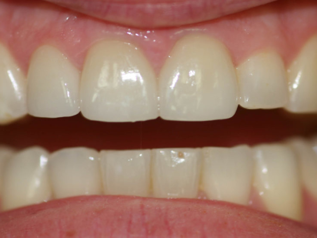 cosmetic dentistry after 16