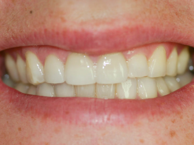 cosmetic dentistry after 16b