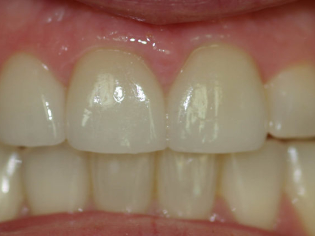 cosmetic dentistry after 16c