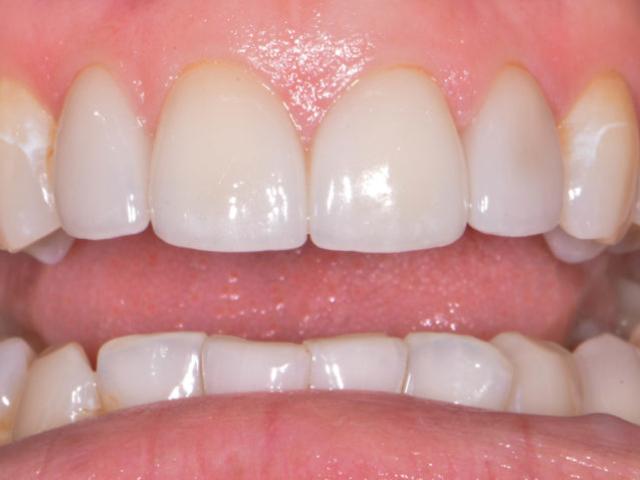 cosmetic dentistry after 17 b