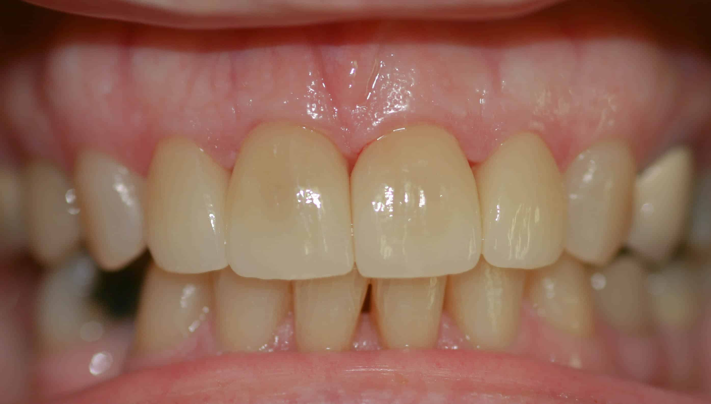 cosmetic dentistry after 19