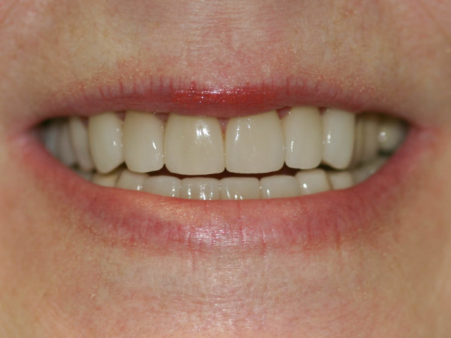 cosmetic dentistry after 23