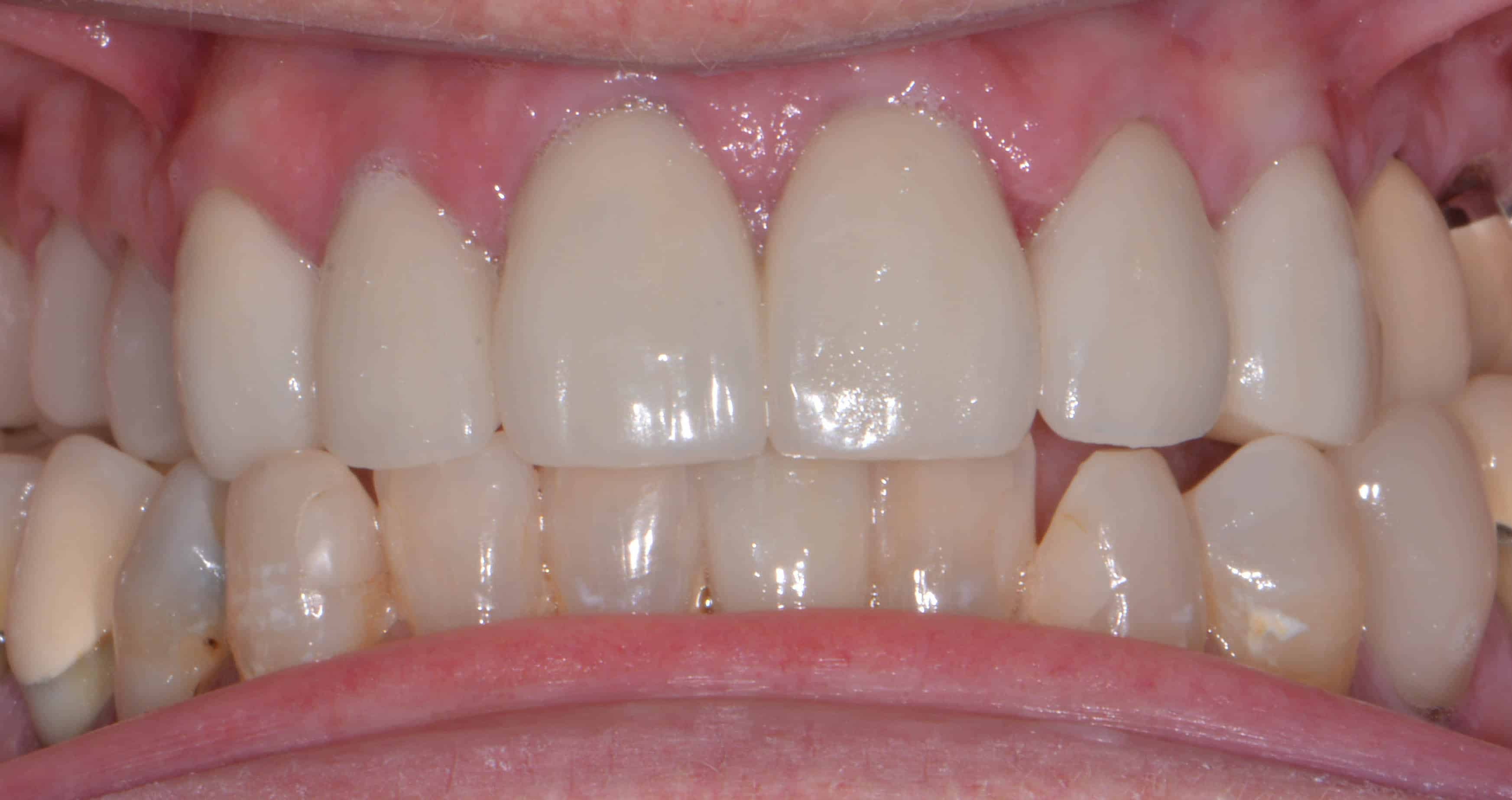 cosmetic dentistry after 24