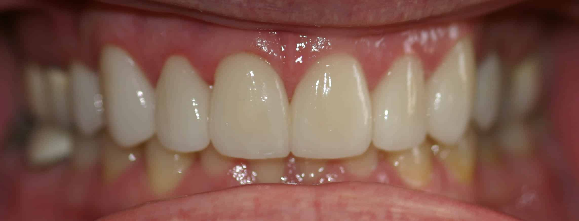 cosmetic dentistry after 25b